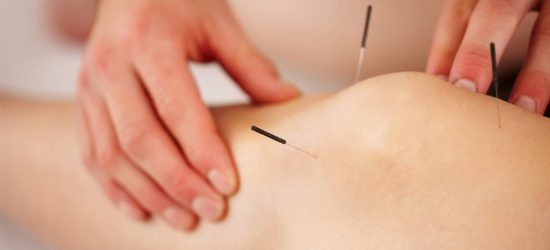 Dry Needling Physical Therapy Treatment Knee